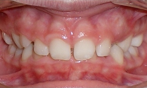 patient with spacing between the teeth and a deep bite before treatment