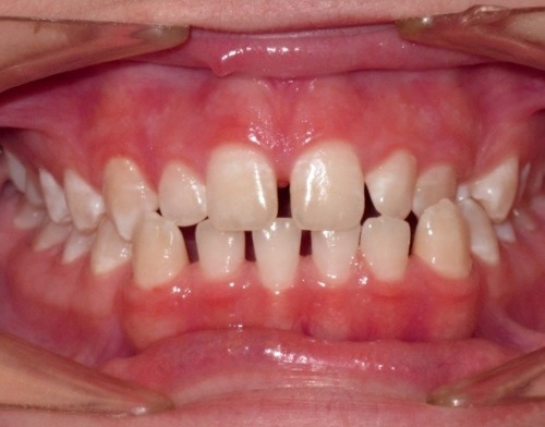 patient before being treated with invisalign