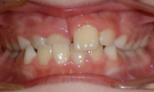 patient with a crossbite before treatment