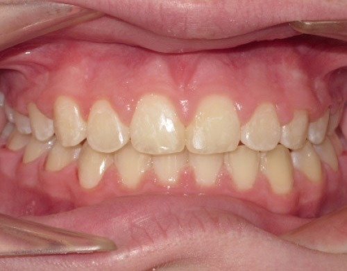 patient with front teeth stuck out after treatment
