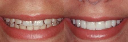 Photo credit: Dr. Alper, DMD, Cosmetic Dentist / Foter / CC BY