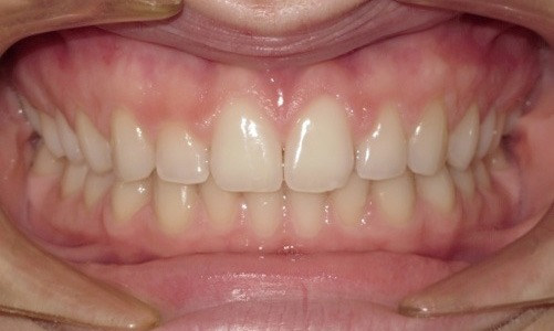 patient with spacing between the teeth and a deep bite after treatment