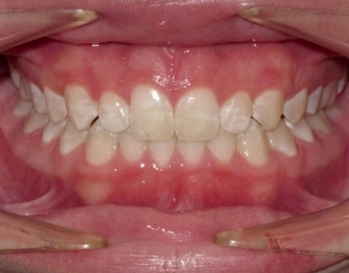 patient after being treated with invisalign