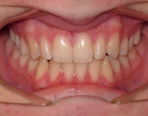 patient with open bite and crossbite after treatment