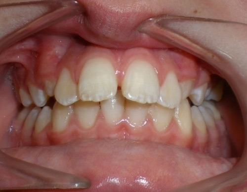 patient with front teeth stuck out before treatment