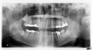 x-ray image of wisdom teeth